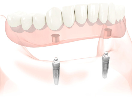 Removable denture implants